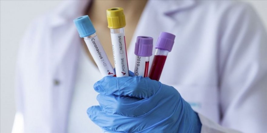 WHO'den korkutan açıklama: Korona aşısı minimum 12-18 ay uzakta