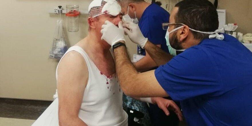 Gelecek Partisi Genel Başkan Yardımcısı Özdağ'a silahlı saldırı