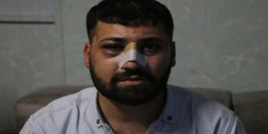 İşkenceden şikayetçi olan Harun Çapkan: Susmayacağım