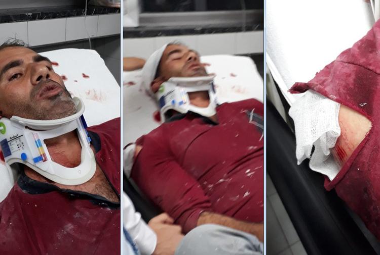 Ankara'da Kürt işçilere saldırı... Birini 5. kattan aşağı attılar