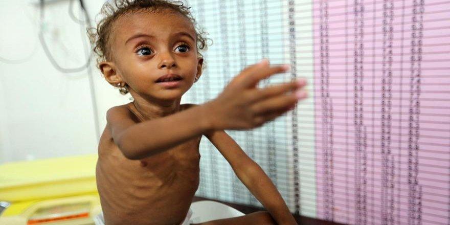 Save the Children: Yemen'de 2019'da 100 bin çocuk koleraya yakalandı