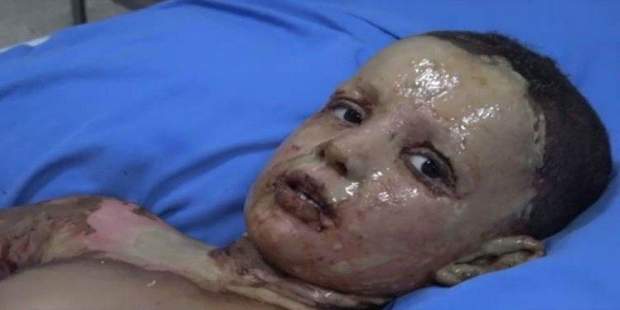 "Rojava'da ""kimyasal silah"" iddiası"