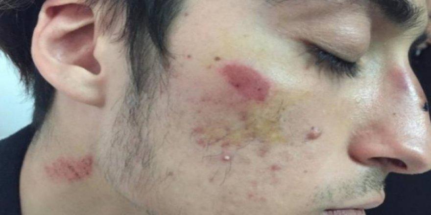 Antalya'da ırkçı saldırıya uğrayan Kürt öğrenciler okulu bıraktı